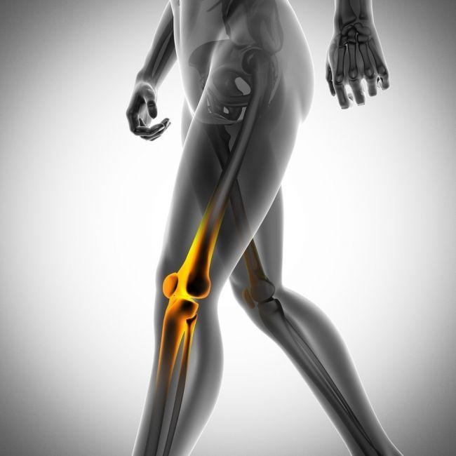 qué-es-el-cáncer-de-huesos