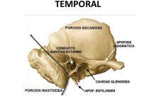 ¿Qué son los huesos temporales?