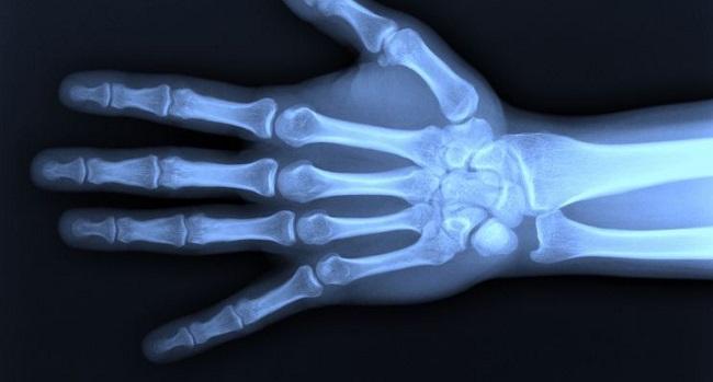 Huesos de los dedos