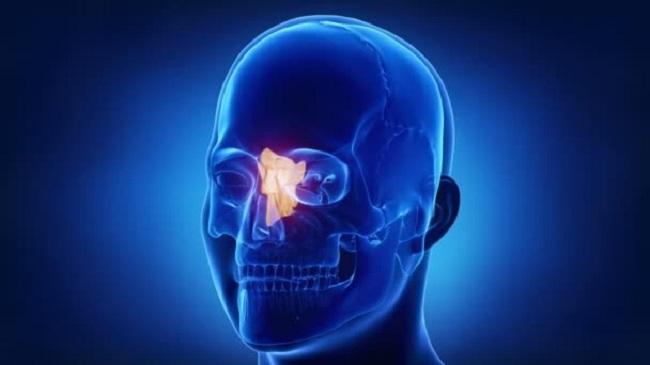 huesosetmoides