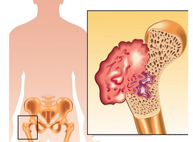 sintomasdelcancerdehuesos